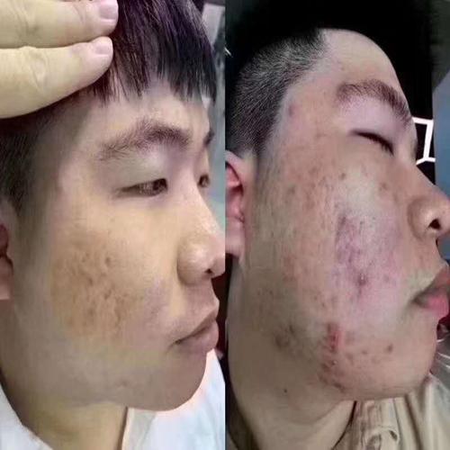 MS-治疗痘痘