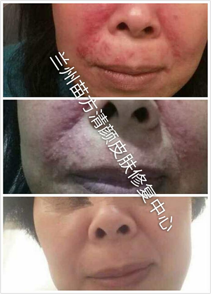 激素脸修复治疗