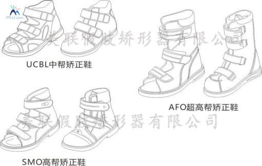 淮安市 矫形鞋定制 矫形鞋垫定制 脊柱侧弯矫形背夹定制 内八字脚如何治疗效果最佳?