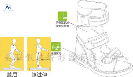 平度市 矯形鞋定制 矯形鞋墊定制  常見的兒童O型腿預防與正確的矯正方法有哪些?