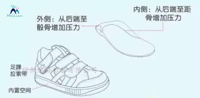 米泉市 矯形鞋定制 足下垂是指不能背屈足部,行走時是拖拉病足或是將該側下肢舉得較高