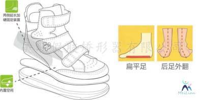 濟南市 矯形鞋定制 矯形鞋墊定制 脊柱側彎矯形背夾定制 扁平足去哪里治療效果最佳?