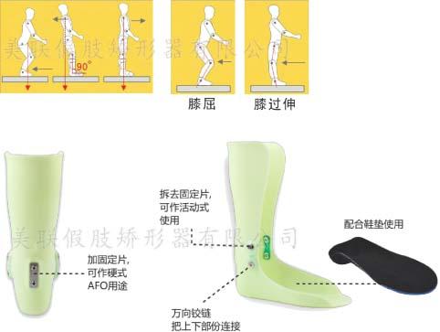 """江门市 矫形鞋定制 矫形鞋垫定制 脊柱侧弯矫形背夹定制  """"x""""型腿的矫正方法有哪些?"""
