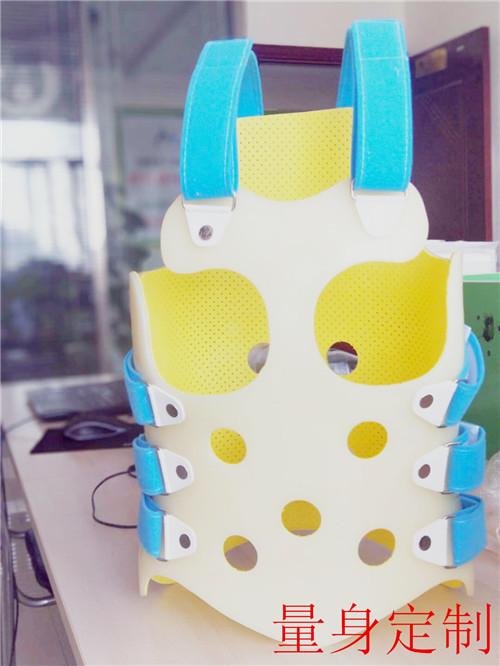 哈密市 矫形鞋定制 矫形鞋垫定制 生长期儿童脊柱侧弯的预防及正确的矫正方法有哪些?