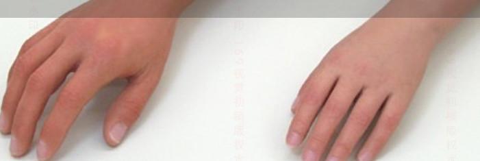 阿勒泰市 矫形鞋定制 矫形鞋垫定制 脊柱侧弯矫形背夹定制 手指假肢的安装与美容?