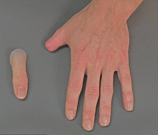 内江市 手指截肢可以安装假肢吗?