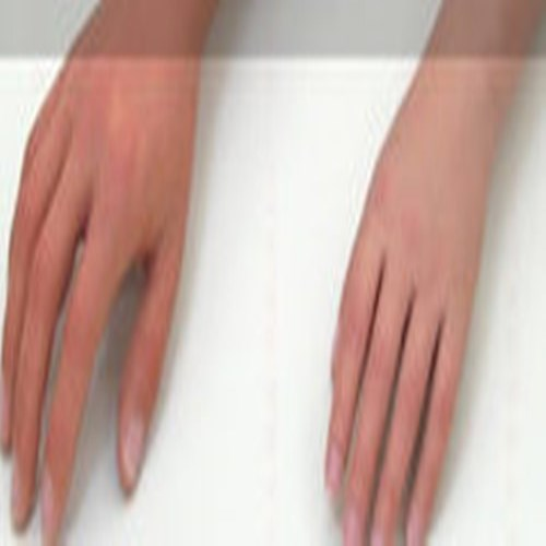 洮南市 手指假肢的安装及美容 矫形鞋定制 儿麻辅具定制 脊柱侧弯矫形背夹定制
