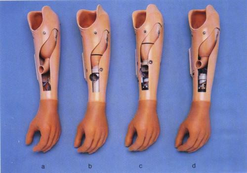 招遠市 矯形鞋定制 兒麻輔具定制 脊斜頸矯形支具定制 什么是肌電上肢?
