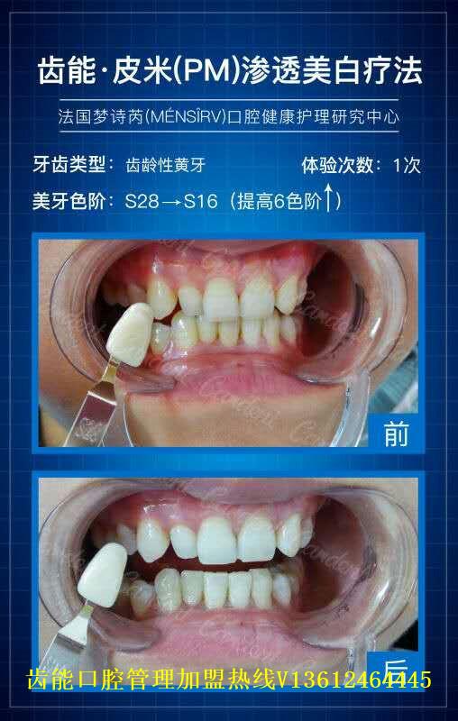 江苏5D6D纳米炫齿浮雕技术培训