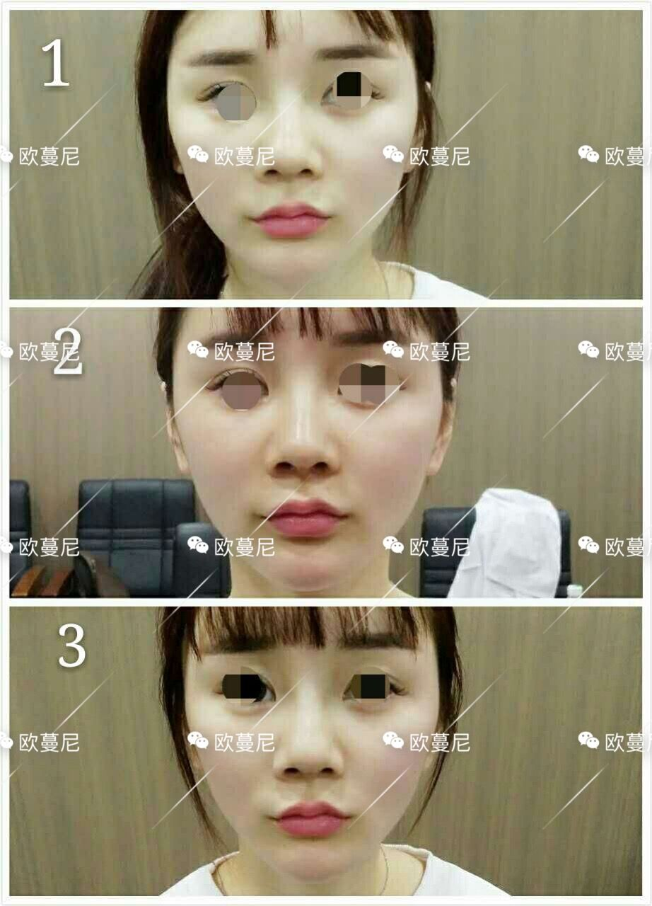 日式筋膜小颜术,明星童颜V脸术