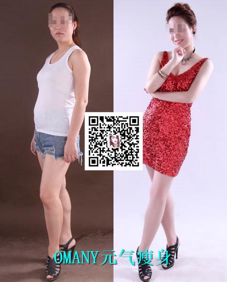 辽宁沈阳产后瘦身的方法欧蔓尼四环瘦身培训告诉你