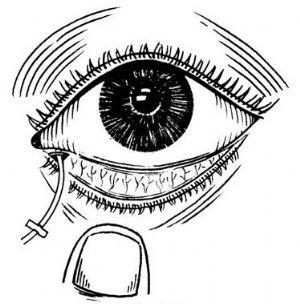 哪些人群适合做义眼手术及什么是义眼台