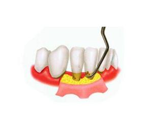 牙周治疗费用