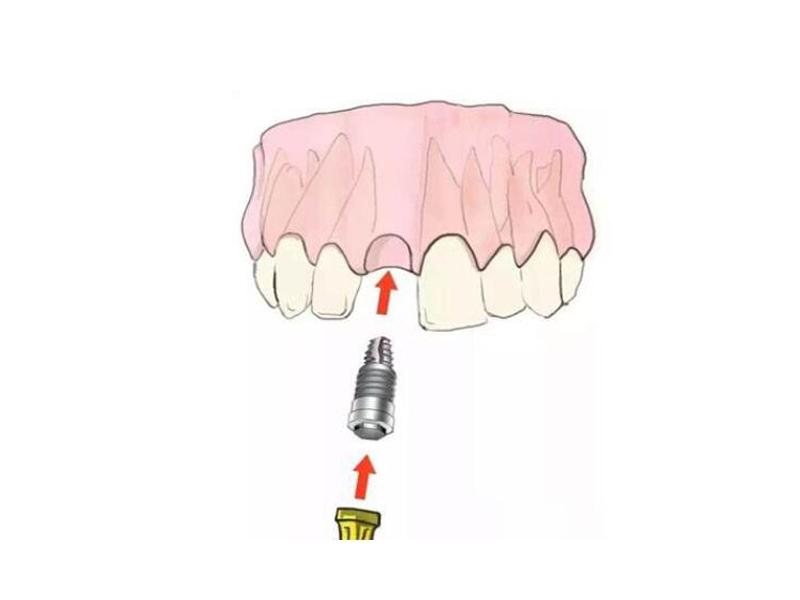 牙齿种植费用