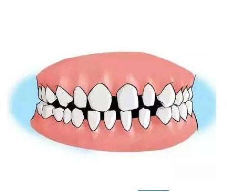 牙齿稀疏矫正