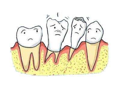 牙龈发炎肿痛