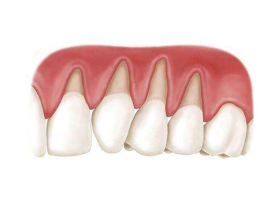矫正牙龈萎缩