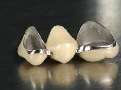 金属烤瓷牙费用