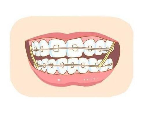 牙齿矫正会改变脸型?堪比整容?