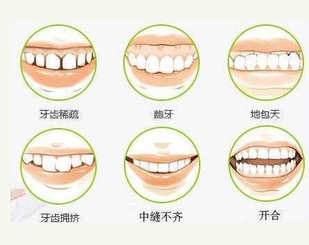 兰州牙齿矫正多少钱?