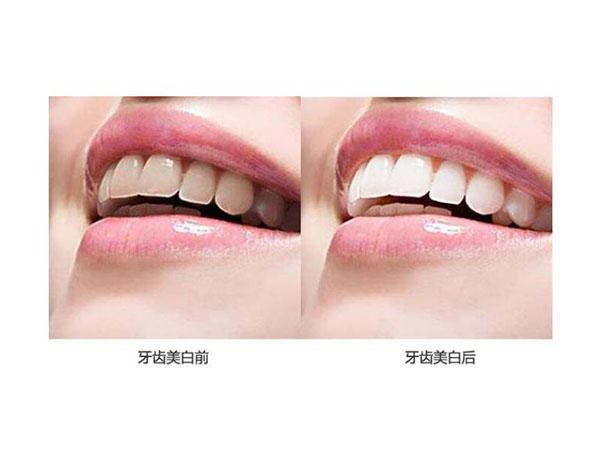 氟斑牙美白