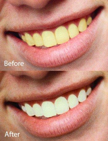 咸阳牙齿美白