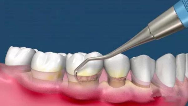 温馨提示:有些情况会增加种植牙齿失败的风险