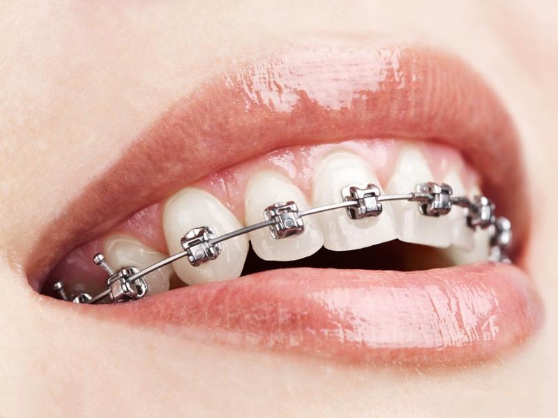 眉山牙齿矫正诊所