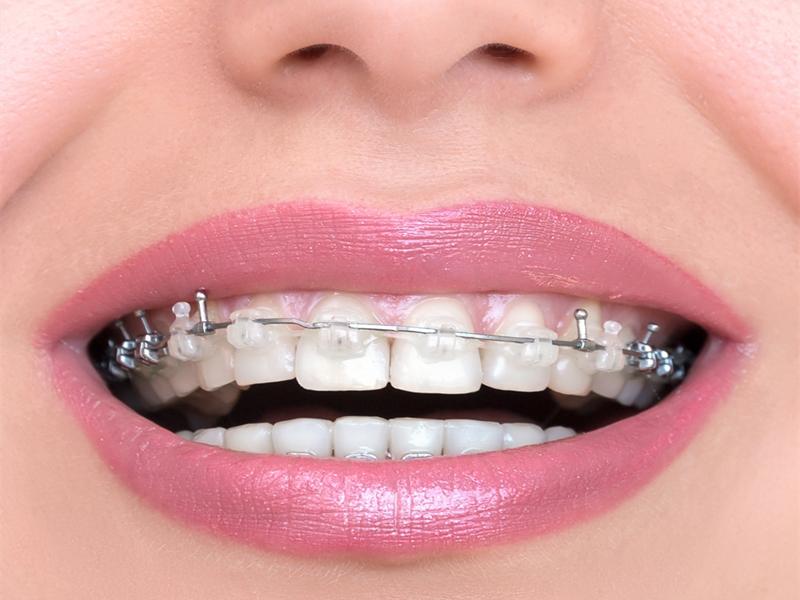仁寿牙齿正畸