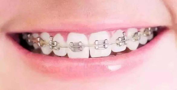眉山牙齿矫正口腔诊所