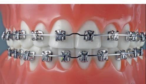 牙齿矫正诊所-DPQ