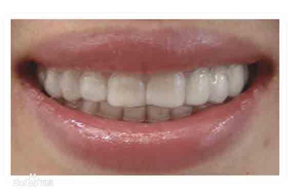 眉山牙齿隐形矫正