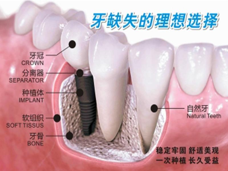 一起来了解一下仁寿现代口腔医院种植一颗牙齿多少钱?