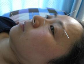 面瘫后遗症的症状,乌鲁木齐治疗面瘫后遗症的医院,新疆友好医院面瘫专科