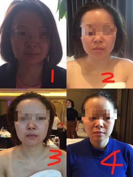 日式皮肤管理技术