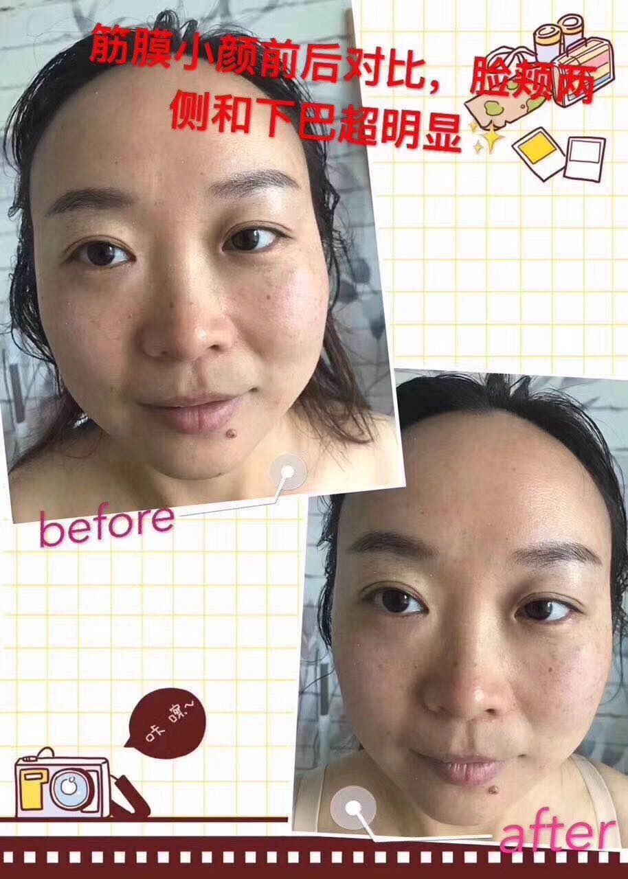 昆明皮肤管理